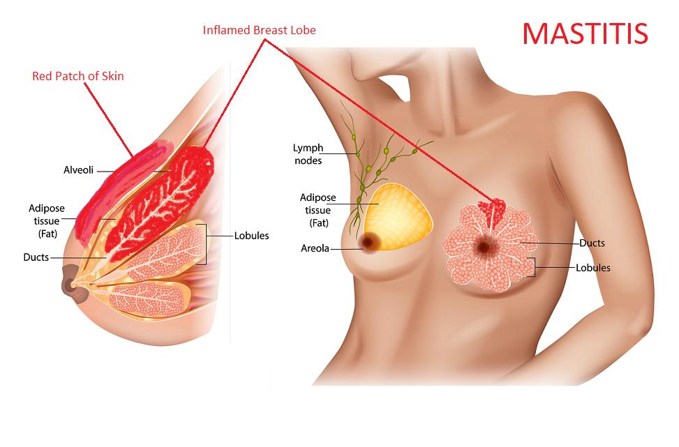 mastitis symptoms | mastitis